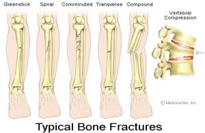 Fractures picture